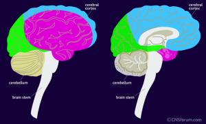 brain_struc_stroke