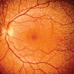 Eye blood vessels and the risk of stroke