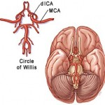 Preventing stroke in intracranial stenotic arteries patients
